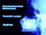 bone-regeneration