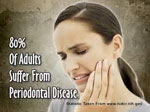 symptoms-of-gum-disease