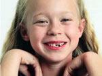 childrens-teeth